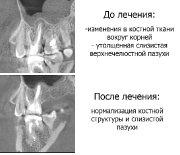 Лечение зубов_2