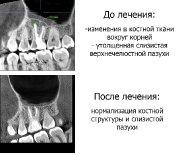 Лечение зубов_3