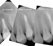 Лечение зубов_4