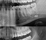 Лечение зубов_5
